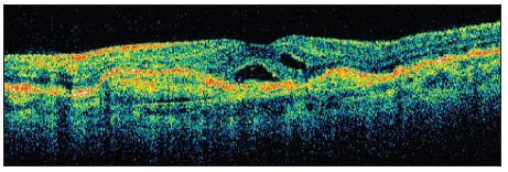 OCT ľavého oka po prvej aplikácii anti-VEGF. Zmenšenie subretinálneho edému a normalizácie hrúbky sietnice v makulárnej krajine. Pretrváva malá ablácia neuroretiny