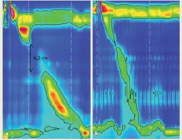 a) Fragmentovaná kontrakcia so zlomom na 20 mmHg izobare, s DCI 760 mmHg/cm/s a predpokladom dostatočnej očisťovacej schopnosti, ktorá by sa v predchádzajúcej klasifikácii určila ako slabá; b) kontrakcia bez zlomu na 20 mmHg izobare, s DCI 190 mmHg/cm/s u pacienta s GERD a slabou očisťovacou schopnosťou pažeráka. Podľa predchádzajúcej klasifi kácie intaktná, podľa v3.0 slabá. Fig. 5. a) Fragmented peristalsis with a break on 20 mmHg isobaric contour, with DCI 760 mmHg/cm/s and sufficient clearance of distal esophagus which would be classified as weak according to version 2012, b) peristalsis without a break on 20 mmHg isobaric contour, with DCI 190 mmHg/cm/s in a patient with GERD and impaired esophageal clearance. According to version2012 classified as intact, according to v3.0 defined as weak