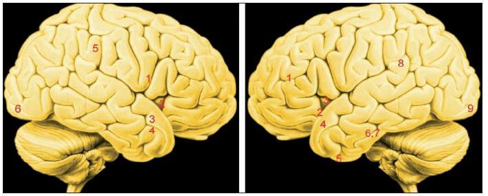 """Obr. 3. Souhrnné výsledky tří studií zabývajících se činností mozku při prožívání intenzivní (vášnivé) romantické lásky. Studie jsou metodicky poněkud odlišné, každá metoda má výhody a omezení (19, 2, 3, 25). Souhrnně viděno aktivuje vášnivá romantická láska oblasti mozku, jejichž činnost je podkladem emocí, motivace, odměny, sociálního poznávání, pozornosti a sebereprezentace, neboli jáství (19).<br> Vysvětlivky: Vlevo: zevní plocha pravé mozkové hemisféry. Vpravo: zevní plocha levé mozkové hemisféry Čísla označují jednotlivé oblasti maximální aktivity, nebo naopak deaktivace, čili poklesu aktivity v """"uzlech"""" neuronálních sítí velkého rozsahu. Propojení s podkorovými oblastmi mozku tato mapa nezobrazuje"""
