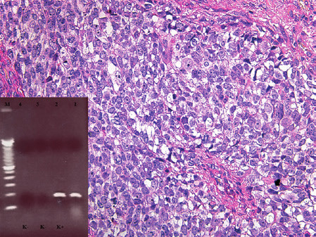 Kazuistika 6. Rabdomyosarkom, v tomto případě alveolární se solidními oblastmi. Bez dalších vyšetřovacích postupů by nádor nebylo možné jednoznačně klasifikovat. Barveno hematoxylinem a eozinem (původní zvětšení 100x). Vložený obrázek: Agarózový gel s detekcí fúzního genu PAX3/FOXO1, který je produktem translokace t(2;13). Zprava: 1. pacientka s RMS, 2. pozitivní kontrola RT-PCR, 3. negativní kontrola RT, 4. negativní kontrola PCR, M - 100 bp velikostní marker.