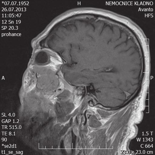 MR hlavy – sagitální řez
