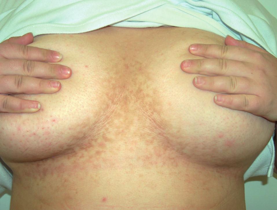 Klinický obraz pacientky – případ 2.