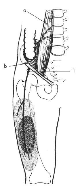 Schéma 2. N. cutaneus femoris lateralis (kořeny L2-3) Scheme 2. N. cutaneus femoris lateralis (L2-3 roots) <em>1 – průstup břišní stěnou pod tříselným vazem. Svaly: a – m.psoas major, b – m. iliacus. Vytečkovaná oblast vyznačuje poruchu čití  1 – the nerve's route through the abdominal wall under the inguinal ligament. Muscles: a – m. psoas major, b – m. iliacus. The dotted area marks a sensation disorder</em>