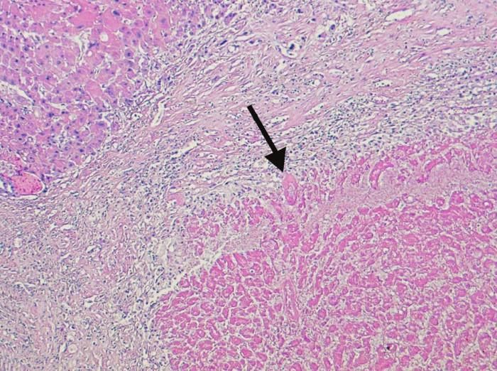 Kompletně nekrotický úsek tkáně nádoru (šipka). Nekróza je obklopená reaktivním lemem vazivové tkáně, vlevo nahoře je část cirhotického uzlu bez nádoru (100x, H&E) Fig. 4. Completely necrotized region of the tumor tissue (arrow). The necrosis is surrounded by a reactive rim of fibrous tissue, in the left upper corner, a cirrhotic, tumor-free bundle can be seen (100x, H&E)