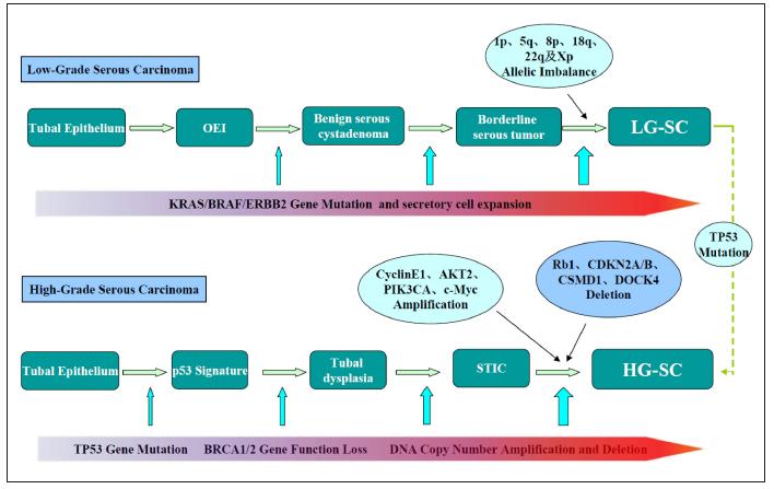 Schéma patogeneze low grade a high grade serózních karcinomů (převzato z Li, 2012)