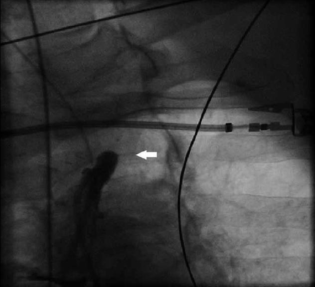 Uzávěr a. subclavia sinistra po odstupu z aortálního oblouku (bílá šipka).