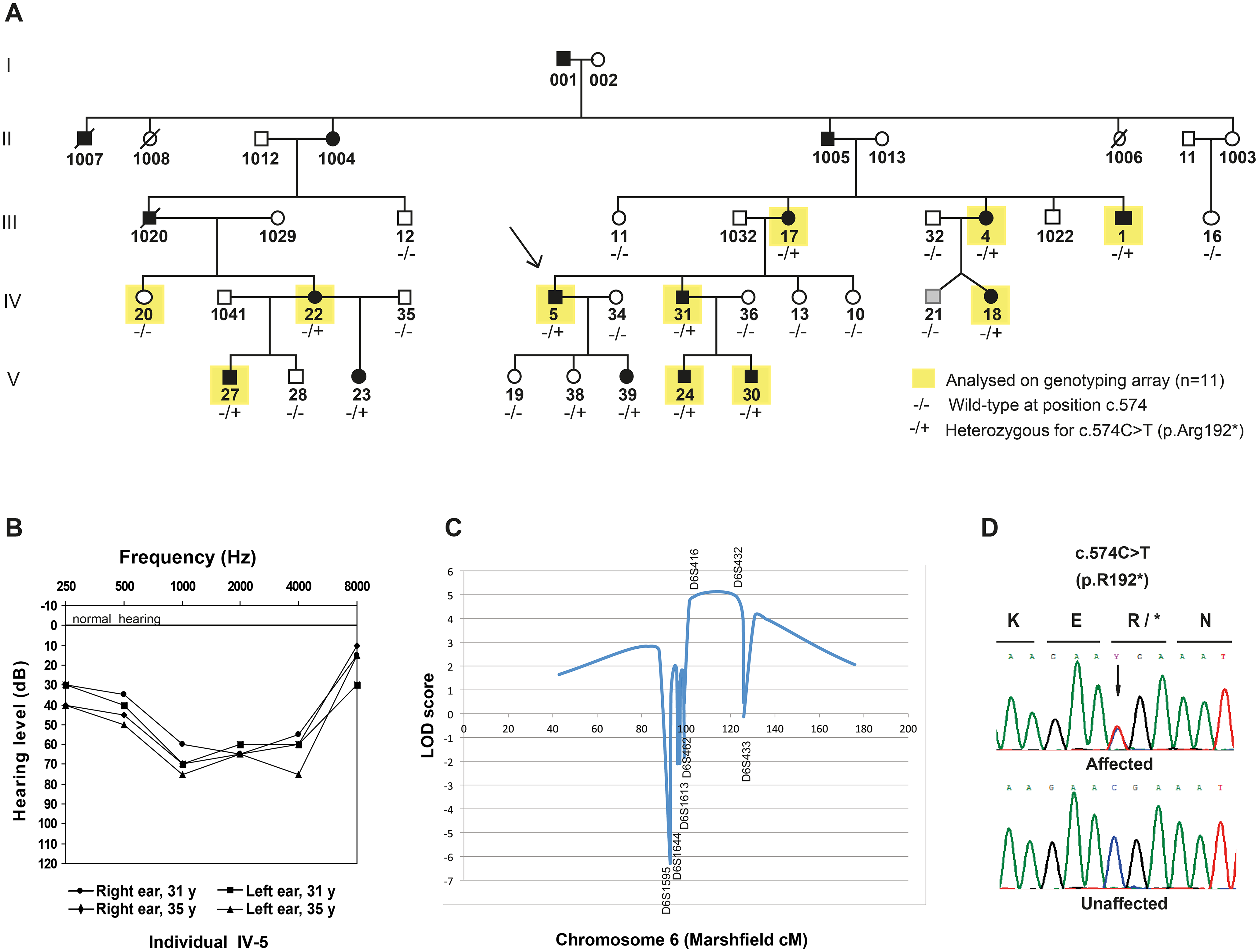 Pedigree, audiograms and linkage peak for a novel locus for dominant inherited nonsyndromic hearing impairment (NSHI).