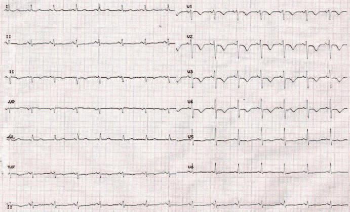 EKG záznam 48 hod po liečbe.