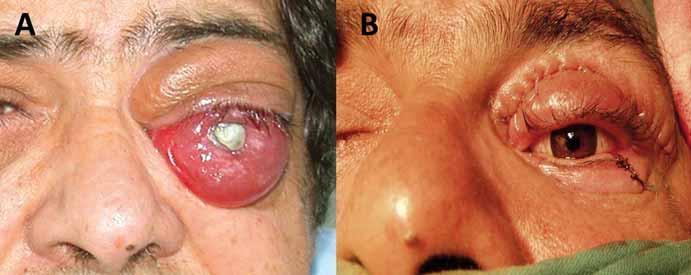 Enukleace bulbu v pozdní fázi meningeomu pochvy optického nervu pro bolestivý exoftalmus slepého oka (A) s následnou plastikou víček a implantací protézy (B).