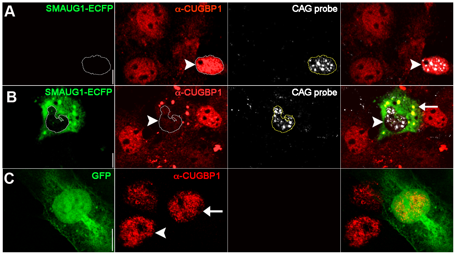 SMAUG1 expression reduces nuclear accumulation of CUGBP1, and both proteins co-localize in cytoplasmic granules.