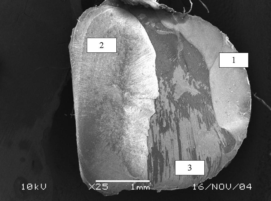 Typický charakter smíšeného lomu zasahujícího do kompozitu (1), dentinu (2) a vrstvy adheziva či hybridní vrstvy (3). Pohled ze strany kompozitního materiálu, adhezivum Gluma Comfort Bond, zvětšeno 25x.