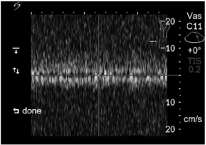 Ultrazvukové vyšetření v dopplerovském modu – obnovení průtoku v cerebrospinální junkci (rychlost toku likvoru 5 cm/s).