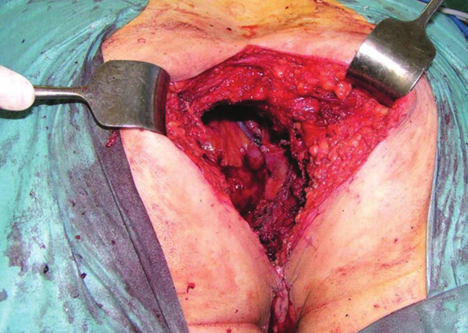 Operační nález, poloha nemocného na břiše: stav po kompozitní pelvické exenteraci s resekcí os sacrum Fig. 7: Surgical finding, patient in the jackknife position: status after composite pelvic exenteration with sacral bone resection