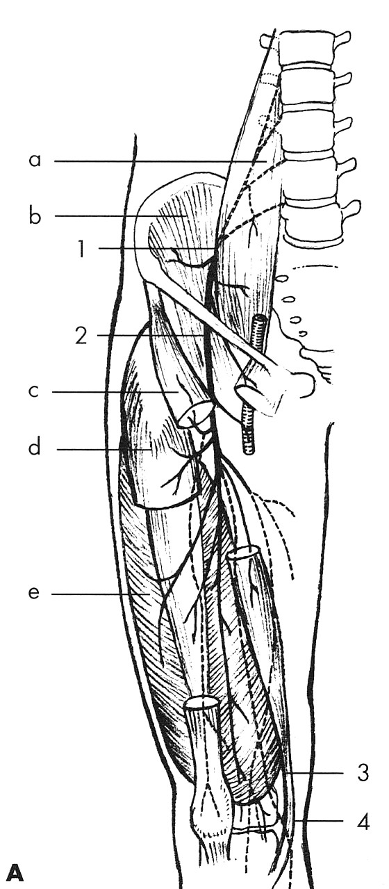 Obr. 3A. N. femoralis Svaly: a – m. psoas major, b – m.iliacus, c – m. sartrorius, d – m. rectus femoris, e – m. vastus lateralis. Místa komprese: 1 – pod fascií m. psoas major, 2 – v oblasti ligamentu inguinale, 3 – v canalis vastoadductorius (hunter), 4 – rr. patellares.