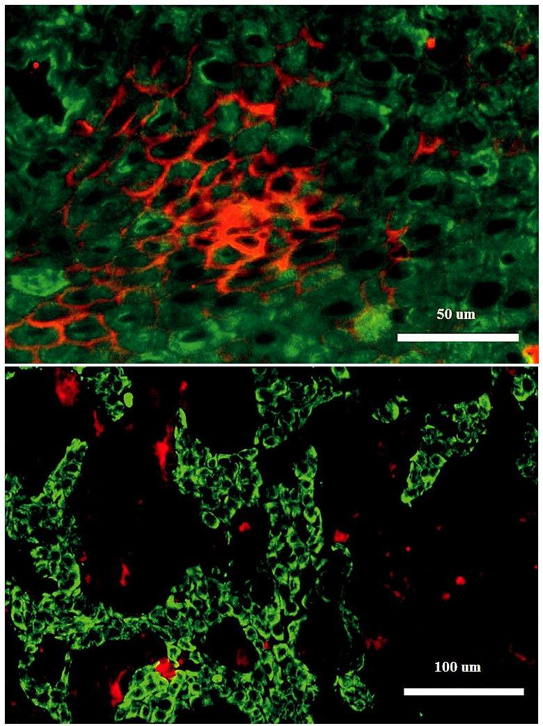 Dobře diferencovaný dlaždicový karcinom tonzily Silná vazba galektinu-3 na povrchu buněk v centrální oblasti nádoru (A); regionální lymfatická metastáza dlaždicového karcinomu tonzily. Metastatické buňky obsahují cytokeratiny, ale nevážou galektin-3 (B). Dvojité fluorescenční značení: LP-34+ cytokeratiny zeleně vazba galektinu-3 červeně.