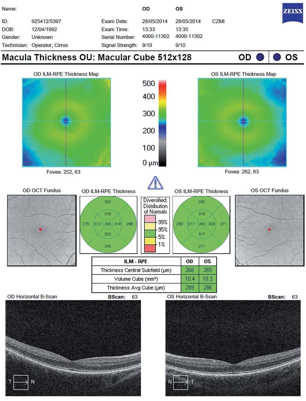 Vyšetření celkového makulárního objemu (Total Macular Volume; TMV) – fyziologický nález (Cirrus OCT HD).