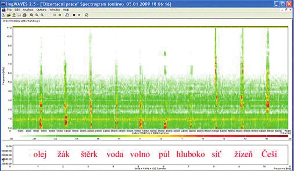 Sonogram slovní audiometrie, dekáda slov, SNR + 10 dB, WN 65 dB.
