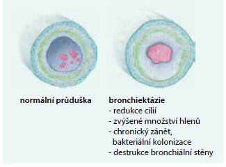 Patogeneze destrukce bronchiální stěny: morfologický rozdíl mezi zdravou průduškou (vlevo) a bronchiektatickou průduškou (vpravo).