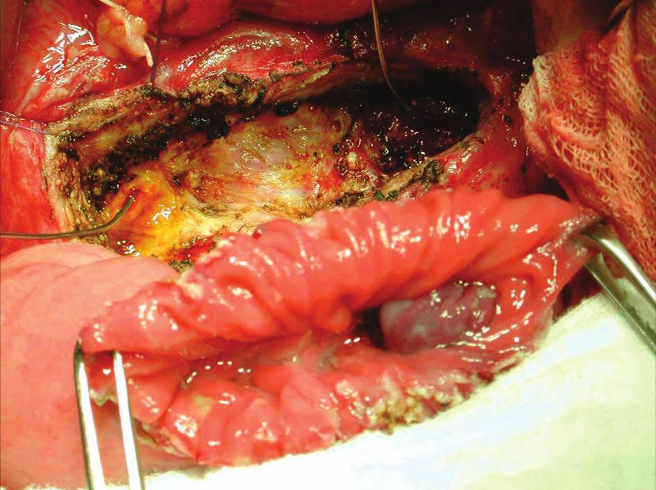 Připraveno k našití PJA side-to-side podle Partington- Rochelle – operační foto