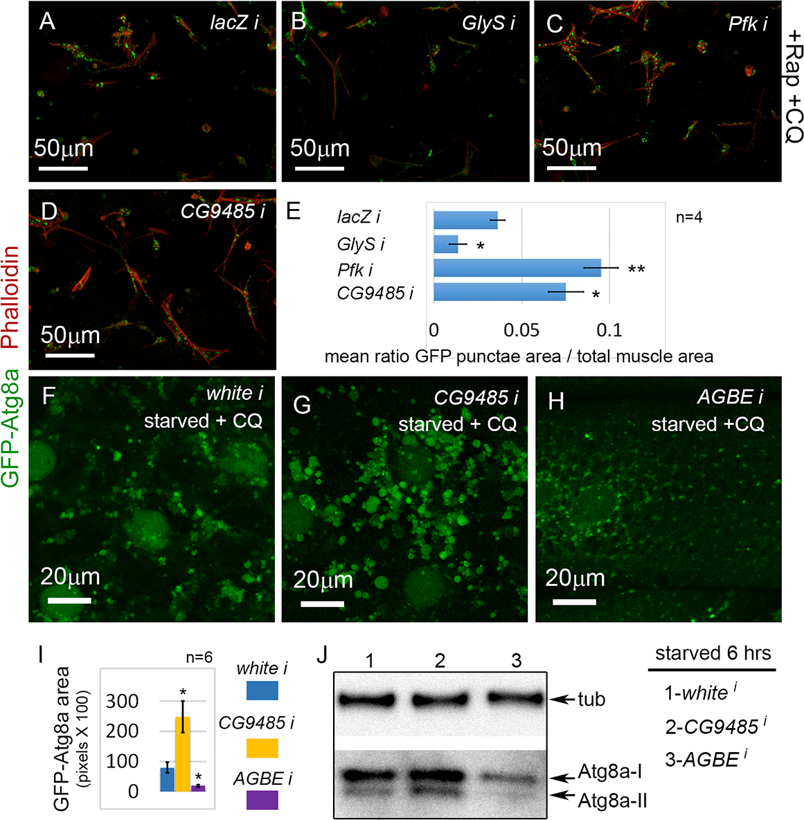Glycogen metabolism enzymes are autophagy regulators in skeletal muscle.