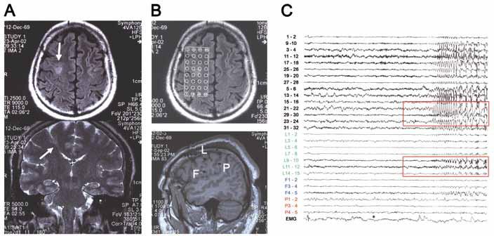 Invazivní EEG vyšetření u pacienta s lézí v sulcus precentralis vpravo. A) předoperační MR (léze označena šipkou). B) lokalizace intrakraniálních elektrod (kombinace subdurálního gridu s kontakty 1–32 + tří ortogonálně zavedených hlubokých elektrod – F, L a P) C) iktální EEG záznam (počátek záchvatové aktivity označen v grafu barevně) (pacient 6).