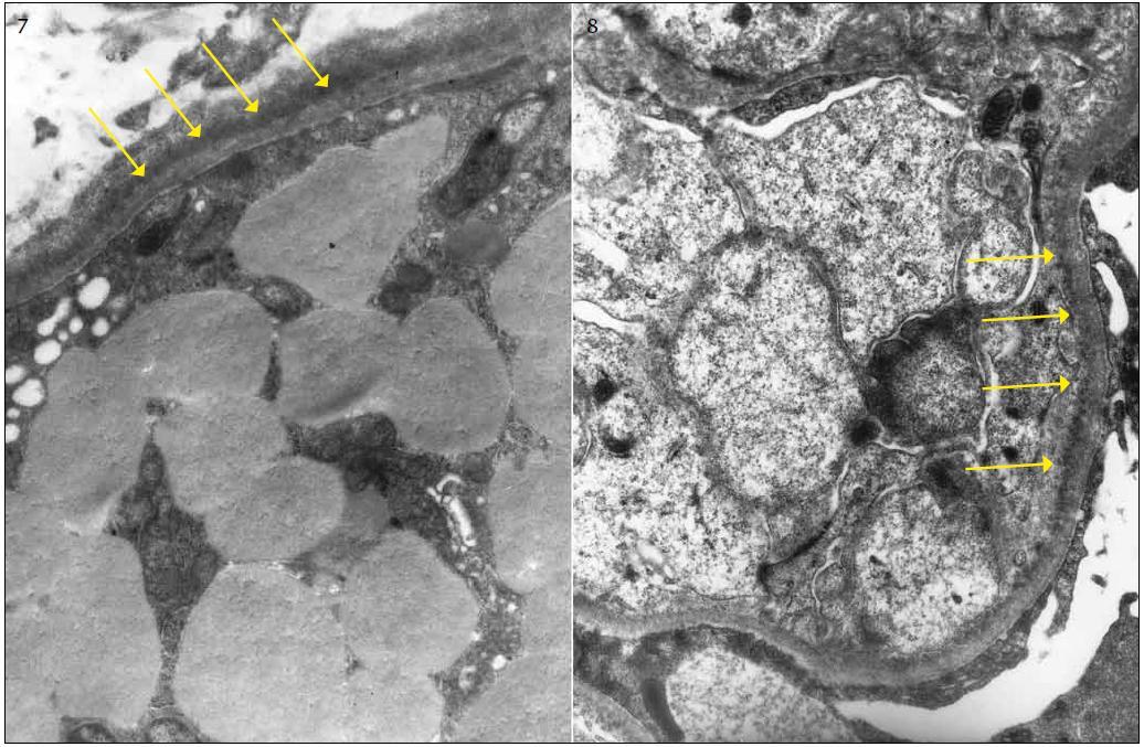 ELMI: granulární depozita lemují ze zevní strany tubulární bazální membránu. Vrstvu elektron-denzního materiálu (depozit) označují šipky. Obr. 8. ELMI: granulární depozita ve velmi tenké vrstvě lemují vnitřní stranu glomerulární bazální membrány, označeno šipkami.