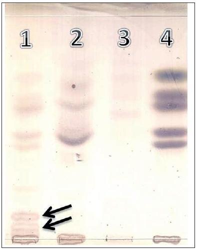 Tenkovrstvová chromatografia (TLC) oligosacharidov moča. Dráha 1: pacient – GM1 gangliozidóza, dráha 2 a 3: normálny profil oligosacharidov v moči, dráha 4: referenčná – štandardy (od vrchu dole), xylóza/glukóza/galaktóza/laktóza/rafinóza. Abnormálne frakcie oligosacharidov typické pre GM1 gangliozidózu sú indikované šípkou. Fig. 3. Thin-layer chromatography (TLC) of urinary oligosaccharides: Track 1: patient – GM1 gangliosidosis, tract 2 and 3: normal profile of oligosaccharides in urine, track 4: reference standards (from top to bottom), xylose/glucose/galactose/lactose/raffinose. Abnormal fractions of oligosaccharides typical for GM1 gangliosidosis are indicated by arrow.