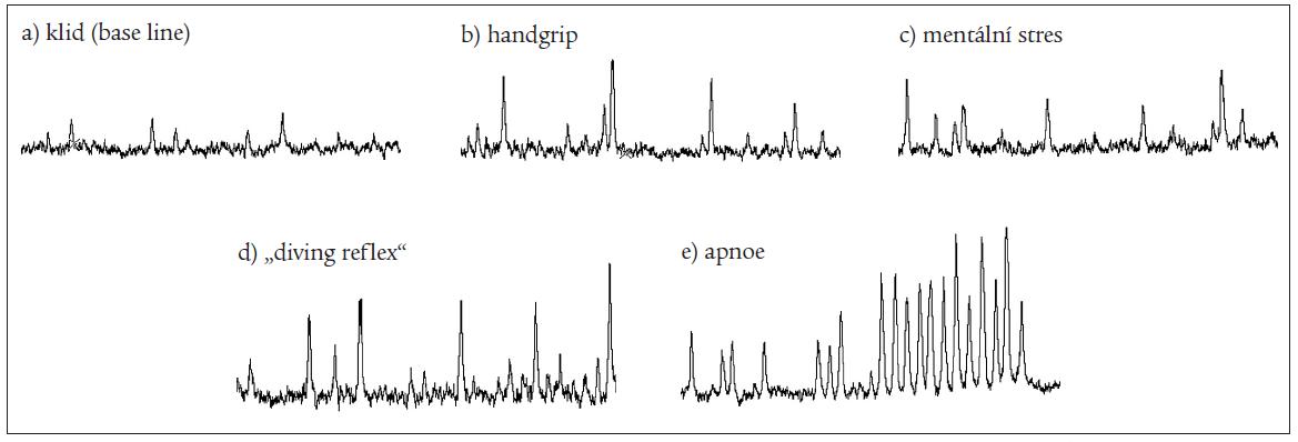 """Obr. Záznam aktivity sympatických nervů inervujících cévy kosterního svalstva v klidu, při izometrické zátěži (handgrip), mentálním stresu, testu """"diving reflex"""" a během apnoické pauzy. Všechny zátěžové záznamy znázorňují posledních 40 s před vrcholem (ukončením) testu. Každý """"burst"""" reprezentuje signál k vazokonstrikci. Z obrázku je zřejmé, že nejsilnějším stimulem pro vzestup aktivity SANS je aktivace chemoreflexu během apnoe. Další podrobnosti viz text."""