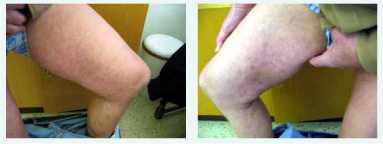 a 4. Stav 28 dnech léčby - kožní nález v podstatě normální