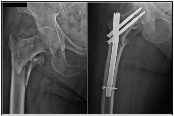 Použití PFN ke stabilizaci pertrochanterické zlomeniny u 88leté pacientky