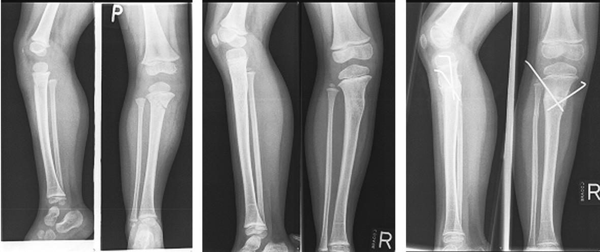 a, b, c. Pacient (č. 16) žena, věk v době úrazu 2, podle rentgenu SH II bez dislokace, během konzervativní léčby valgozita, proto korekční osteotomie a fixace K-dráty