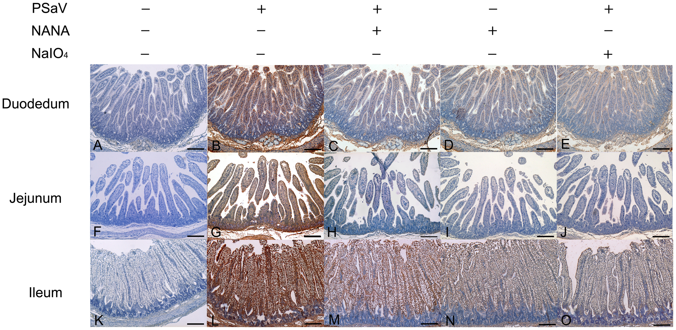 Attachment of porcine sapovirus Cowden strain to porcine intestinal sections is blocked by <i>N</i>-acetyl neuraminic acid (NANA) or pretreatment with NaIO<sub>4</sub>.