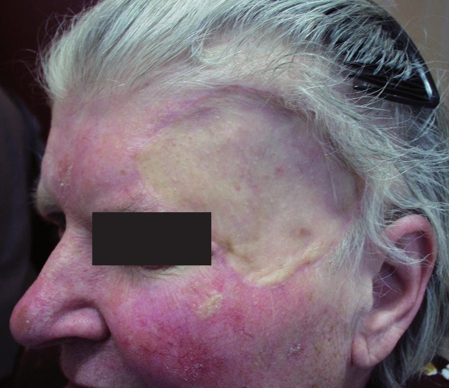"""""""Záplata"""" po přihojení transplantátu plné kůže."""