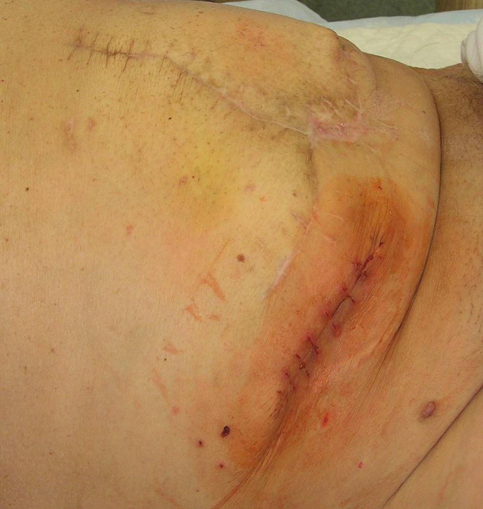 STP zrušení cekostomie Fig. 5. Status after caecostomy removal