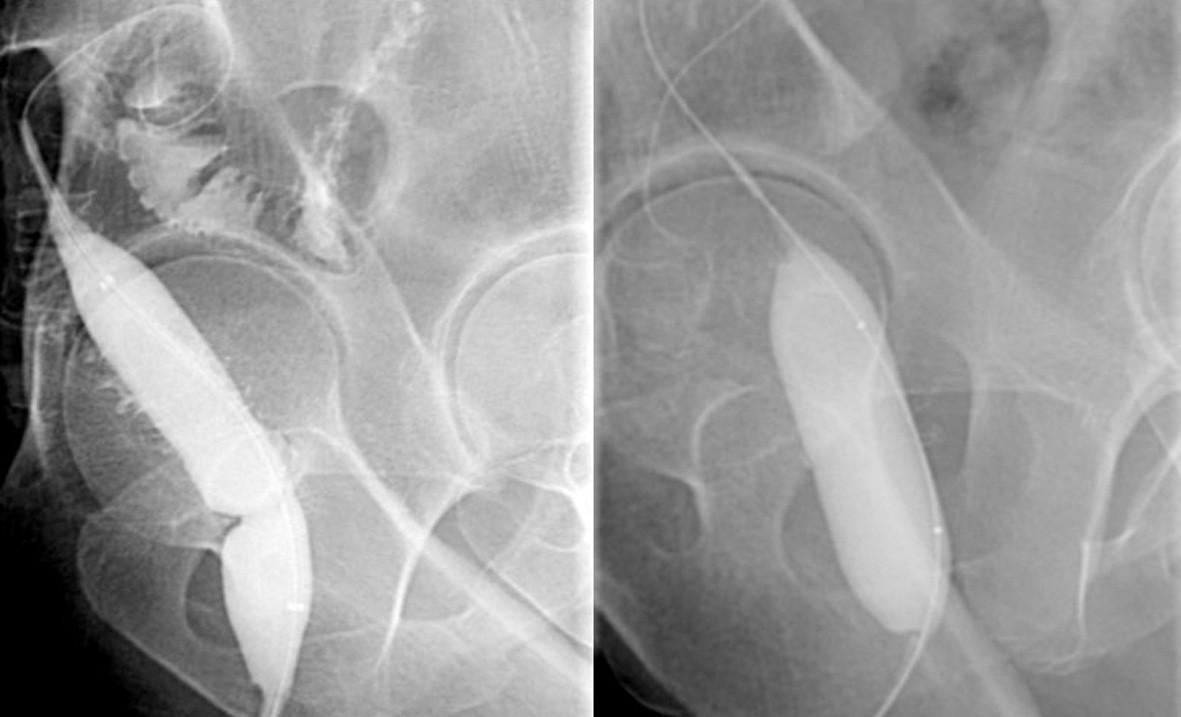 Balonková dilatace striktury kolorektální anastomózy Fig. 1. Balloon dilatation of the stricture of the colorectal anasomosis