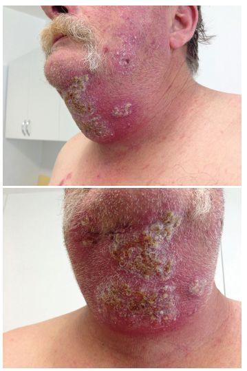a 2. Klinický obraz před léčbou