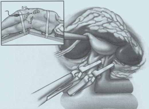 Separované klampování renálních cév při retroperitoneoskopické resekci.