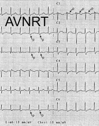 Atrioventrikulární nodální reentry tachykardie (AVNRT). Šipky ukazují na negativní morfologii P-vln těsně za QRS komplexem ve svodech II, III, VF, což potvrzuje diagnózu typické AVNRT. Začátek P vln je dobře patrný < 80 ms za začátkem QRS-komplexu v 1. hrudním svodu – C1.