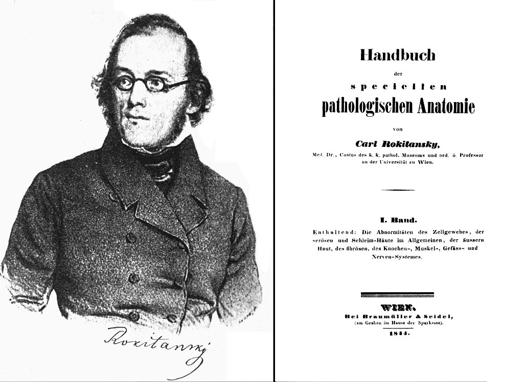 Rokitanský na litografii z roku 1839 a titulní strana jeho monografie