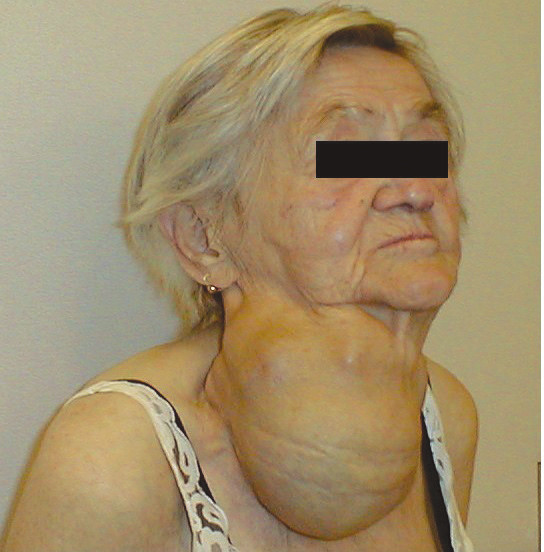 80ti letá nemocná s endemickou polynodózní strumou
