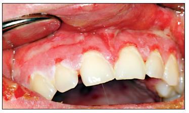 Obraz deskvamativní gingivitidy v horní čelisti.