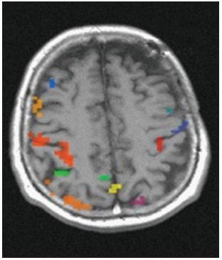 Vyšetření funkční MR po EC–IC bypassu – zlepšení aktivního kortexu vlevo.