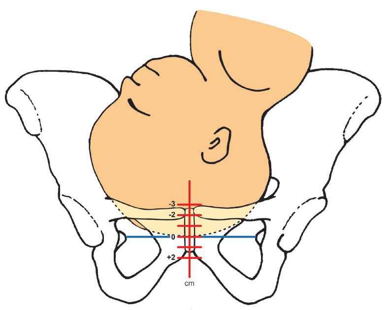 Hodnocení VZDÁLENOSTI vedoucího bodu pod rovinou procházející spinae ischiadicae