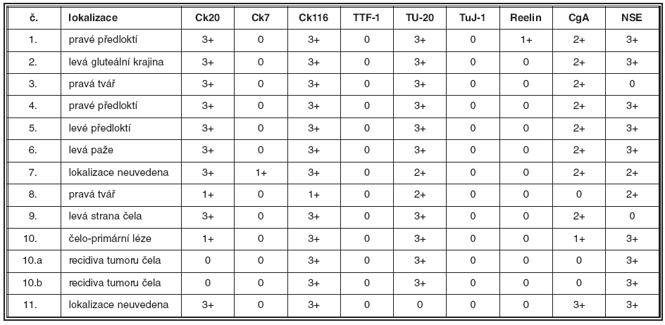 Základní klinické údaje a výsledky imunohistochemických reakcí v souboru pacientů