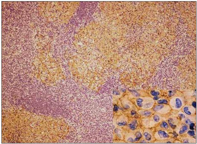 Obr. 6. Lymfatická uzlina, imunohistochemické barvení s protilátkou proti antigenu CD1a: nádorové buňky vykazují pozitivitu CD1a, což způsobuje hnědé membránové zbarvení (viz detail vpravo).