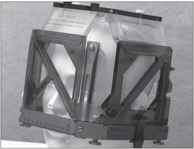 Obr. 3. Leksellův stereotaktický rám a indikátorový box. Indikátorový box připevněný na rám umožňuje stanovení souřadnic v nitrolebním prostoru.