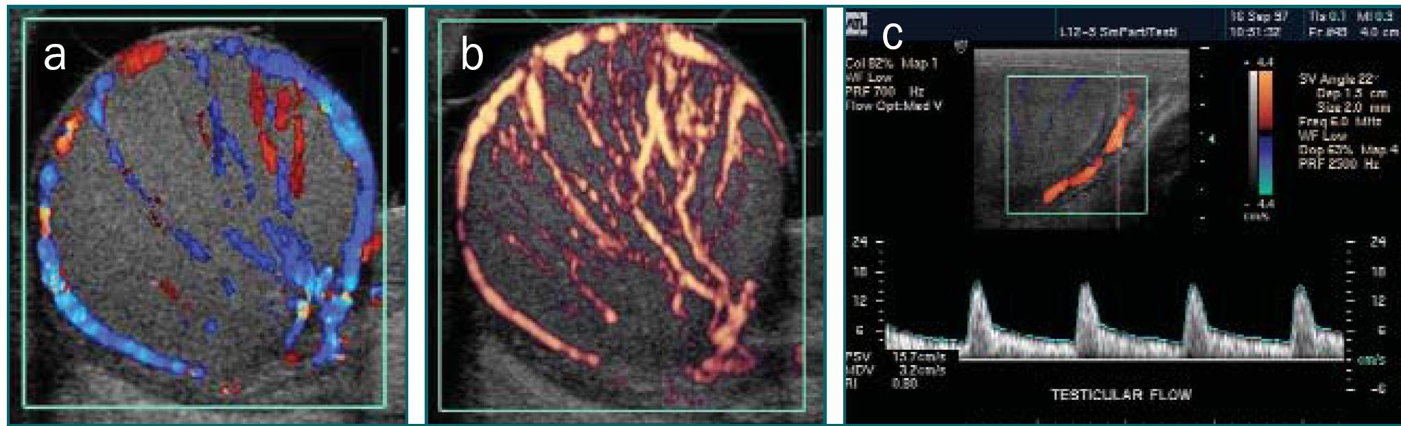 Schéma 9 a,b,c. Dva obrázky provedené pomocí duplexního Dopplerova ultrazvukového vyšetření (a). Barevné Dopplerovo ultrazvukové vyšetření a spektrální Dopplerovo ultrazvukové vyšetření (průtok krve je zobrazen jako vlna) (c). Barevné Dopplerovo ultrazvukové vyšetření (a) zobrazuje směr průtoku pomocí různých barev. Krev proudící směrem k sondě (barvy v horní části barevné škály) je nutné odlišit od krve proudící směrem od sondy (barvy ve spodní části barevné škály) pomocí barevné škály (zobrazeno v (c)). Power Dopplerovo ultrazvukové vyšetření (b) poskytuje informaci o množství průtoku, ovšem bez informace o směru průtoku.