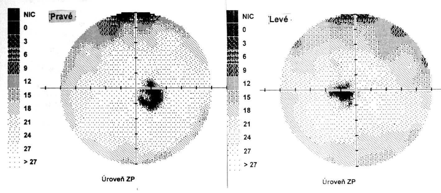Perimetrický nález – chronické štádium VKH syndrómu