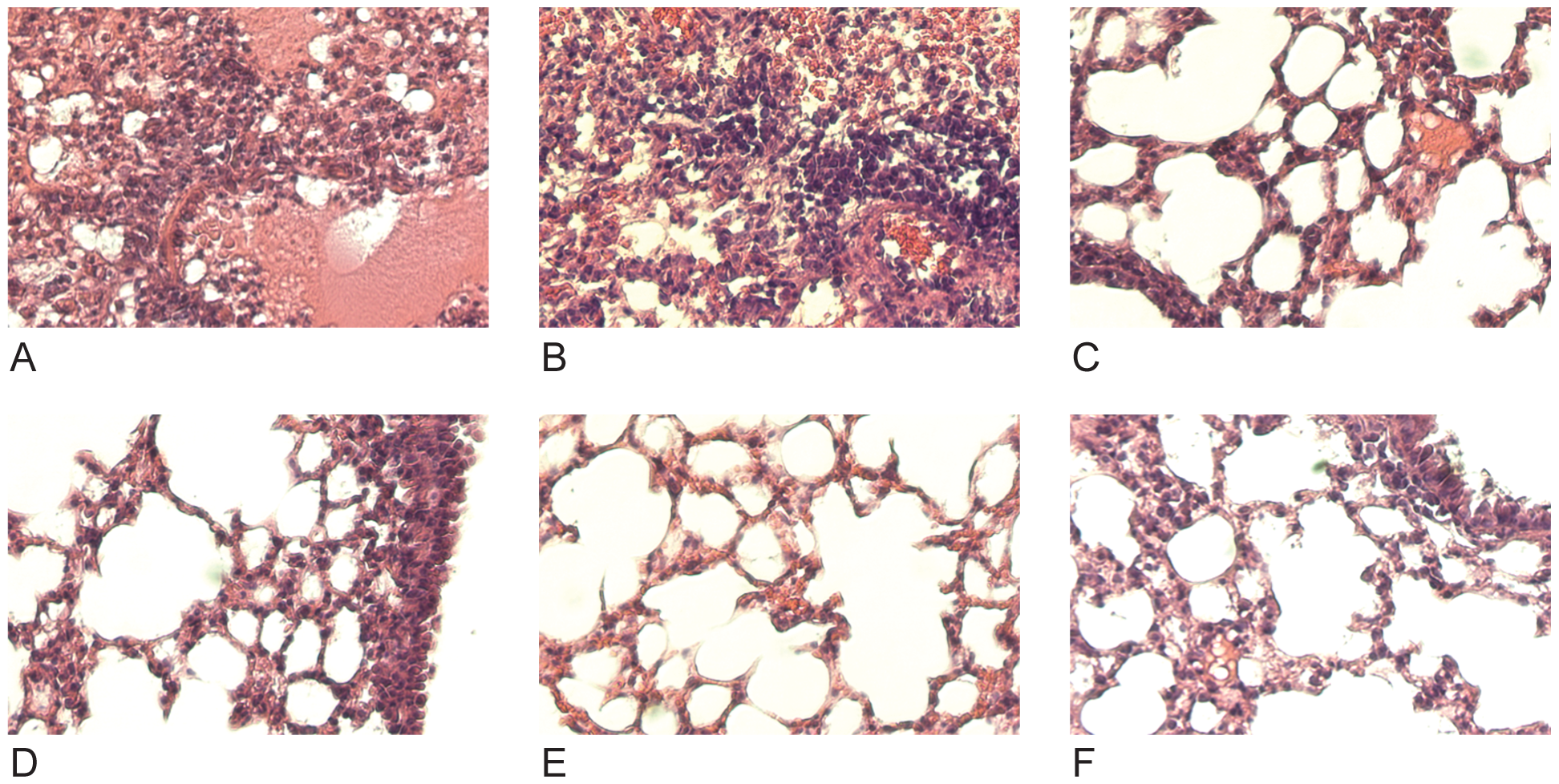 Treatment with anti-H3 mAbs diminishes lung damage associated with viral pneumonia caused by HK68/PR8 reassortant virus.