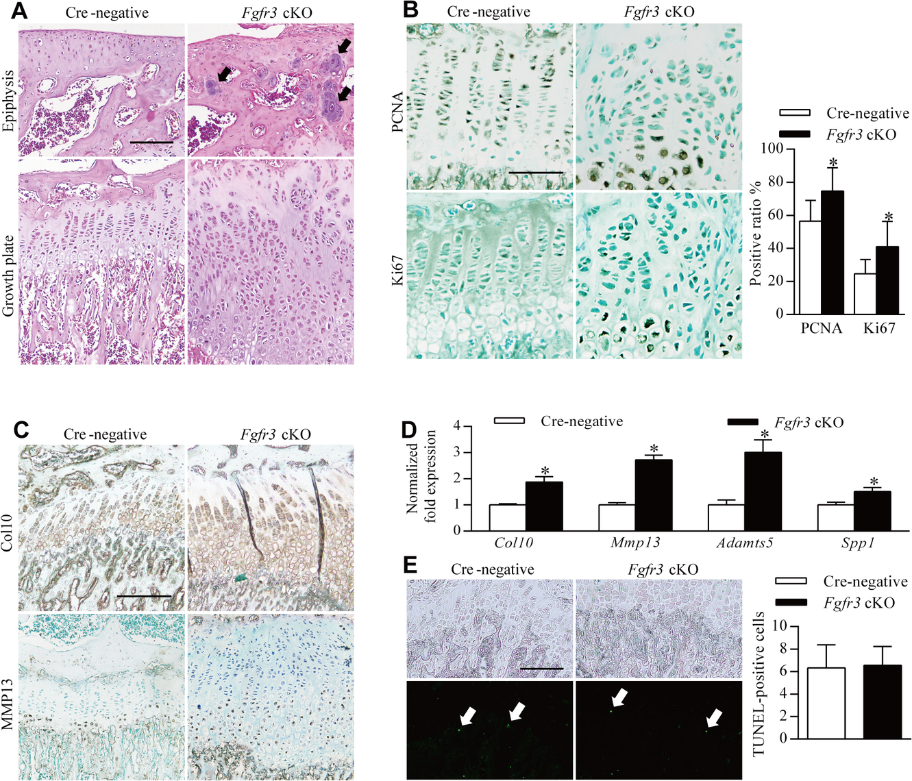 Impaired homeostasis of growth plate chondrocytes in <i>Fgfr3</i> cKO mice.
